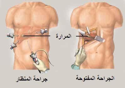 الفرق بين عمليه المرارة بالمنظار والجراحة؟ وأيهما أفضل؟