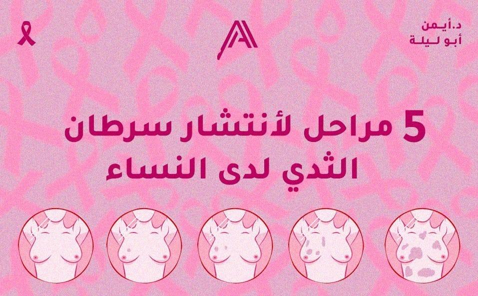 5 مراحل انتشار سرطان الثدي